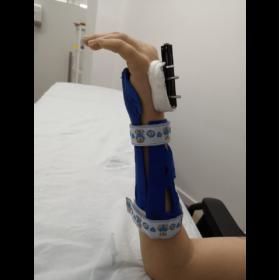 Ortesis inmovilizadora para fijador 3D, impidiendo flexo extensión